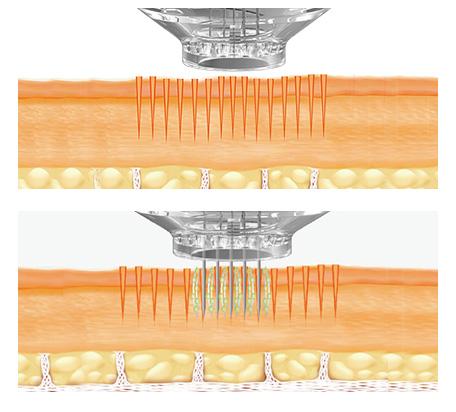 głowica urządzenie epn zigłami pracująca na fragmencie skóry